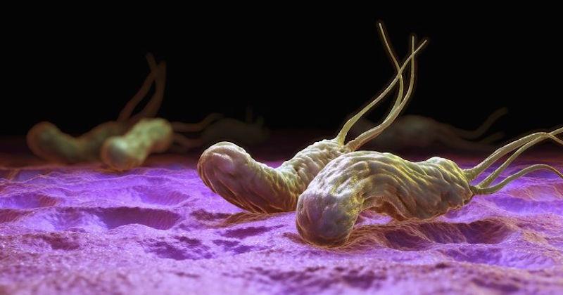 Stomach Ulcers & H. pylori
