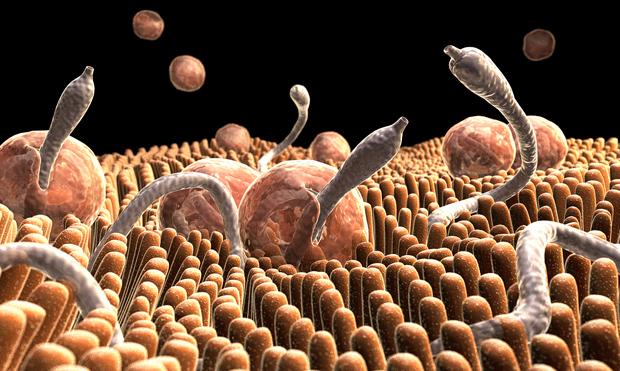 Are You Hosting Parasites?
